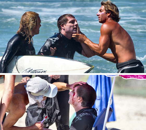 Chris Owen: surf injuries mean blood