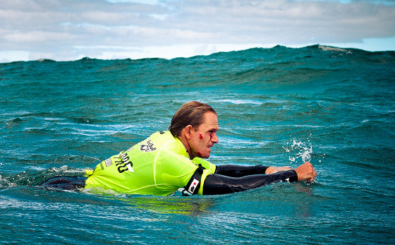 Damian King: leaving scars in bodyboarding