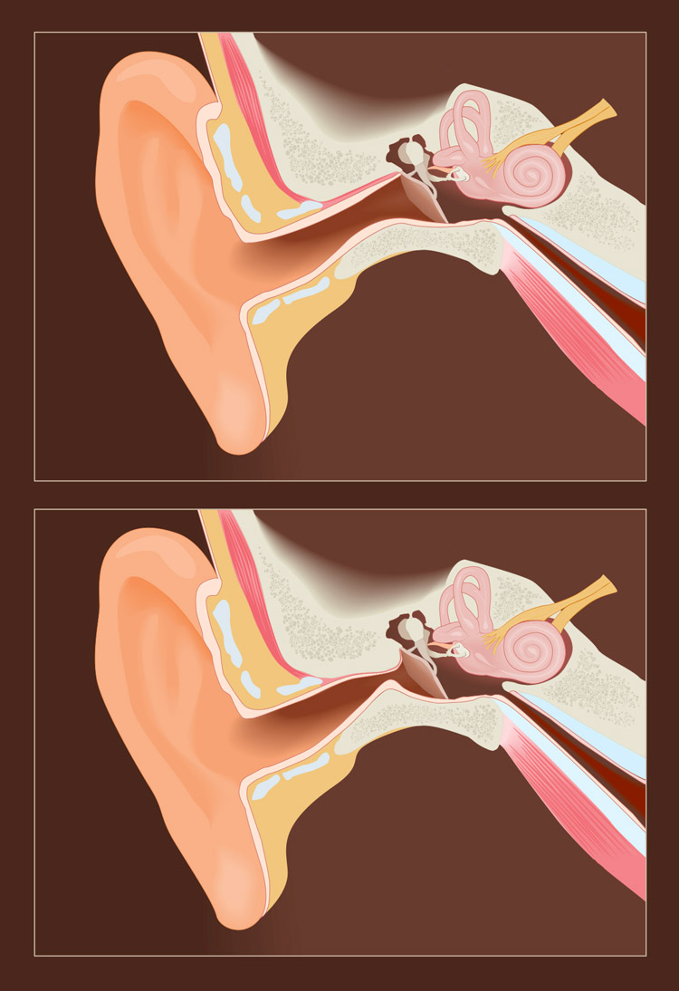 Exostosis: an healthy ear canal (above), and a Surfer's Ear (below) | Illustration: Shutterstock