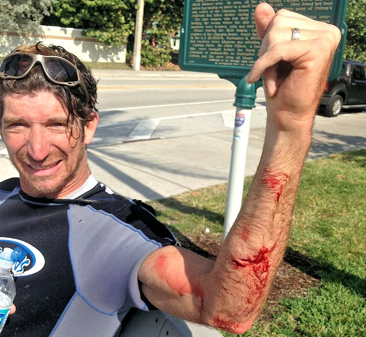 Kitesurfer survives shark attack in Florida