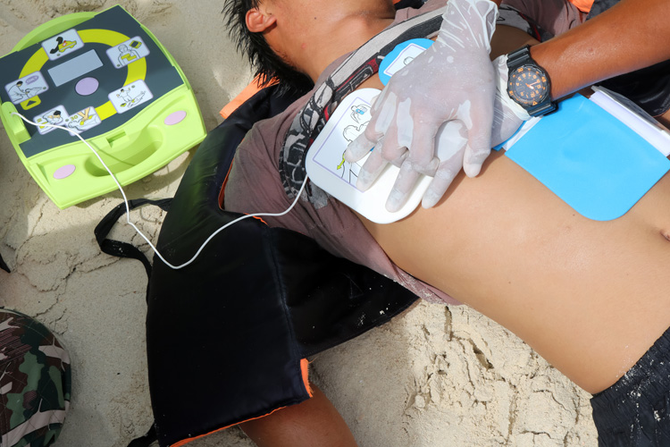 CPR: lifeguards should know how to perform a cardiopulmonary resuscitation lifesaving technique | Photo: Shutterstock
