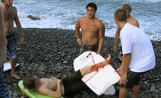 Maui shark attack: when surfers help each other