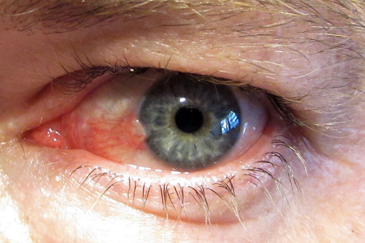 Pterygium: a 20-minute surgery removes the surfer's eye completely | Photo: Boston/Creative Commons