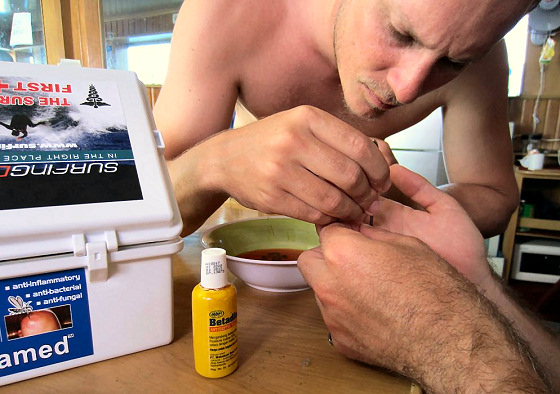 The Surf Doctors' First Aid Kit: it doesn't hurt