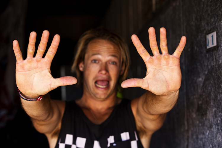 Windsurfer hands: blisters and calluses are part of the job | Photo: Carter/PWA